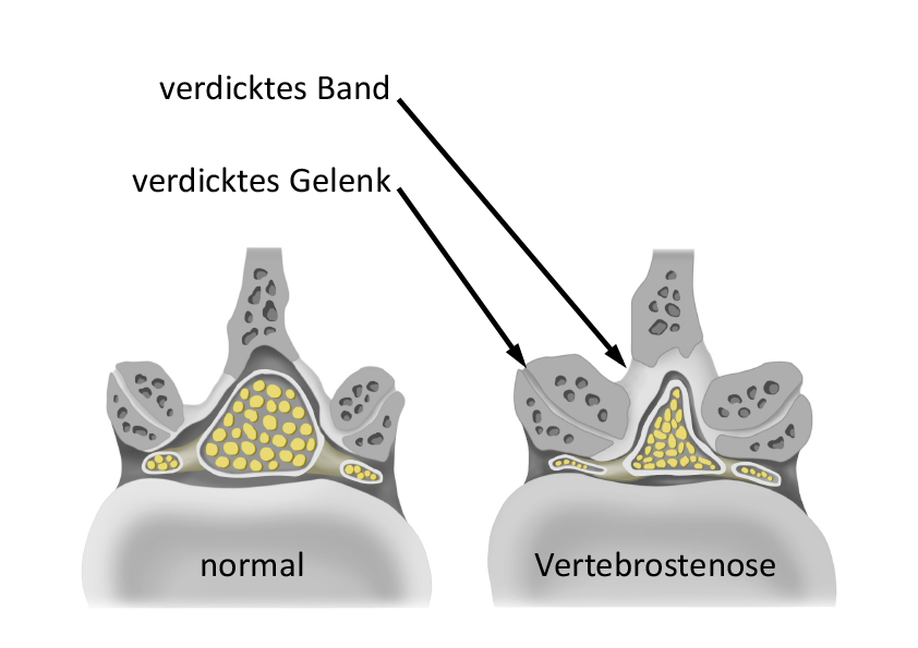 Normal_Vertebrostenose_illu